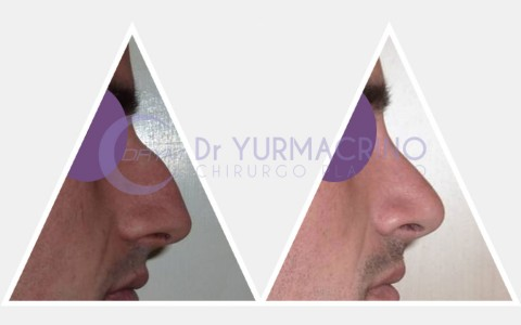 Men Rhinoplasty – Case 4/B