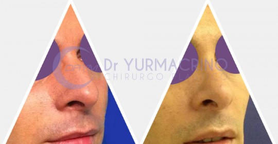 Men Rhinoplasty – Case 5/A