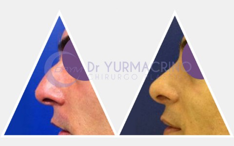 Men Rhinoplasty – Case 5/B