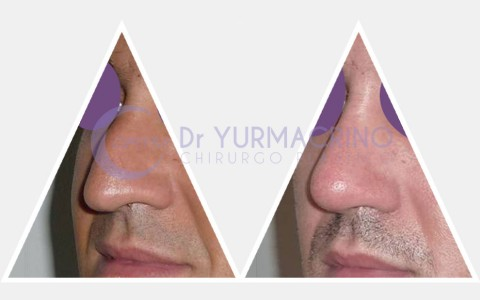 Men Rhinoplasty – Case 6/A