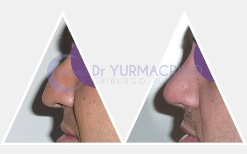 Men Rhinoplasty – Case 6/B