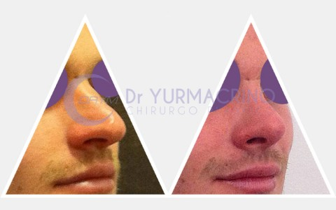 Men Rhinoplasty – Case 7/A