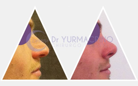 Men Rhinoplasty – Case 7/B